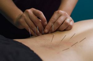 Myotherapy - Dry Needling